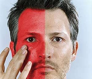 Как избавиться от эритрофобии (блашинга) и гипергидроза